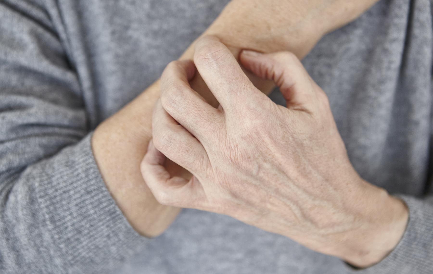 Piel seca en el brazo