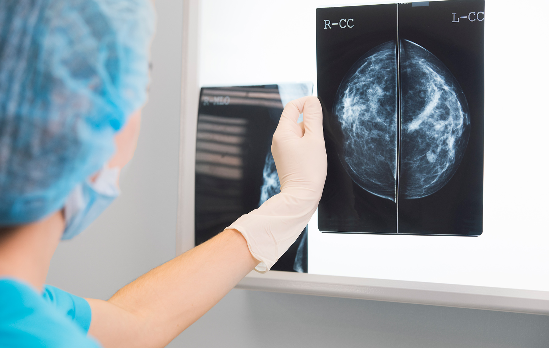 Doctor checking radiography