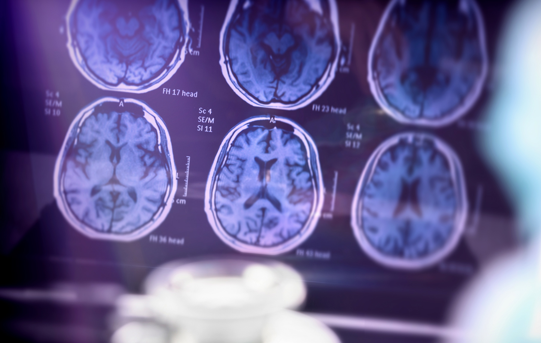 brain radiography