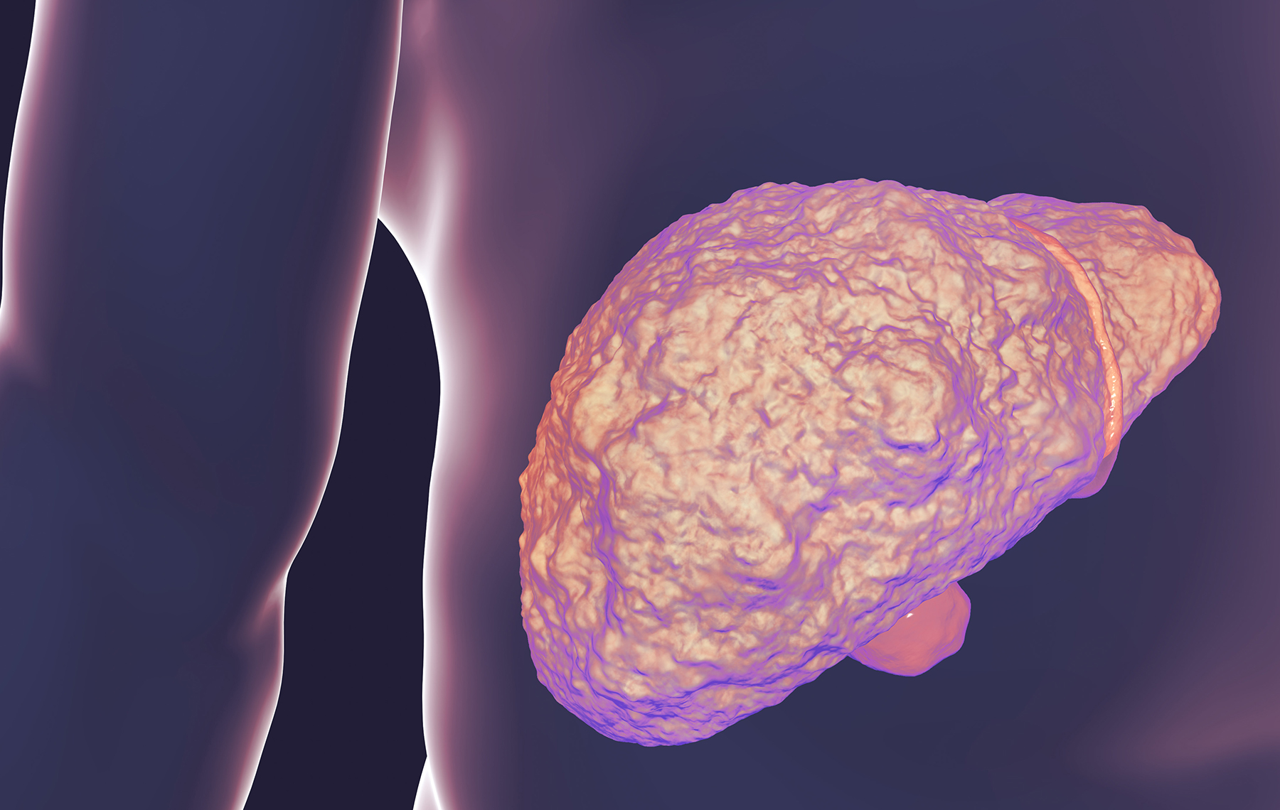 Picture of an ill liver